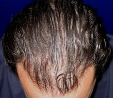 Hair Transplant CLIENT #3 TOP-VIEW