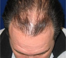 Hair Transplant CLIENT #4 TOP-VIEW