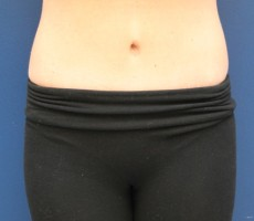 Tummy Tuck CLIENT #4 FRONT-VIEW