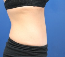Tummy Tuck CLIENT #4 SIDE-VIEW
