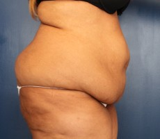 Tummy Tuck CLIENT #1 SIDE-VIEW