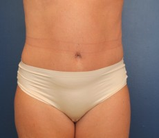 Tummy Tuck CLIENT #2 FRONT-VIEW
