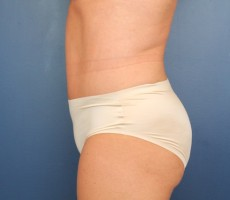 Tummy Tuck CLIENT #2 SIDE-VIEW