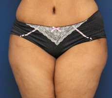 Tummy Tuck CLIENT #1 FRONT-VIEW