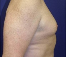 Male Breast Reduction for Gynecomastia CLIENT #3 SIDE-VIEW