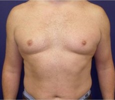 Male Breast Reduction for Gynecomastia CLIENT #3 FRONT-VIEW