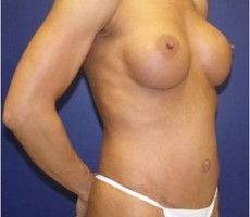Breast Augmentation with a Tummy Tuck CLIENT #2 SIDE-VIEW