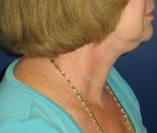Necklift CLIENT #2 SIDE-VIEW
