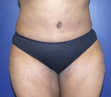 Tummy Tuck CLIENT #6 FRONT-VIEW