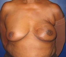 Breast Reconstruction CLIENT #2 FRONT-VIEW