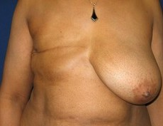 Breast Reconstruction CLIENT #1 FRONT-VIEW