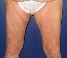 Thighplasty (Thigh Lift) CLIENT FRONT-VIEW