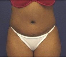 Tummy Tuck CLIENT #3 FRONT-VIEW