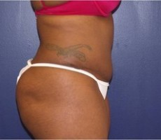 Tummy Tuck CLIENT #3 SIDE-VIEW