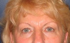 Eyelid Surgery (Blepharoplasty) CLIENT #5 FRONT-VIEW