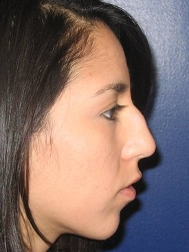 Rhinoplasty (nose surgery) CLIENT #1 SIDE-VIEW