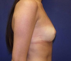 Breast Augmentation CLIENT #1 Sideview