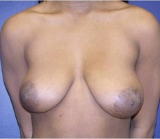 BALTIMORE BREAST LIFT CLIENT #2 FRONT-VIEW