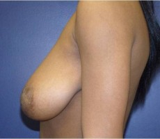 BALTIMORE BREAST LIFT, CLIENT #2 SIDE-VIEW