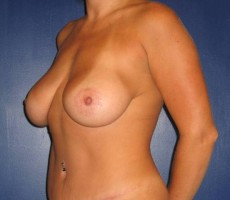 Tummy Tuck CLIENT #5 FRONT-VIEW
