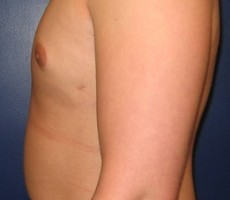 Male Breast Reduction for Gynecomastia CLIENT #1 SIDE-VIEW