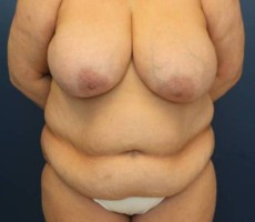 Baltimore Body Lift, Client #3, Front View