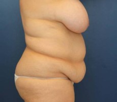 Baltimore body lift, Client #3, Side View