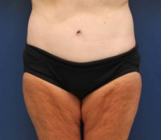 BALTIMORE BODY LIFT CLIENT #4 FRONT VIEW