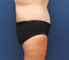 BALTIMORE BODY LIFT CLIENT #4 SIDE VIEW