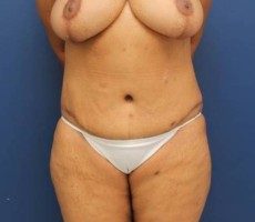 BALTIMORE MOMMY MAKEOVER, FRONT VIEW