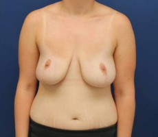 BALTIMORE BREAST REDUCTION #6 FRONT VIEW