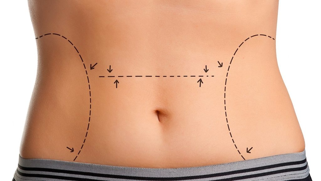 tummy tuck in Baltimore MD