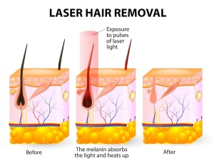 Baltimore Plastic Surgeon, Dr. Jeffrey E. Schreiber MD, Offers Laser Hair Removal Services2