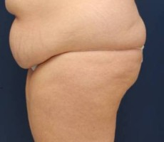 BALTIMORE BODY LIFT CLIENT #5 SIDE VIEW
