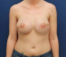 BALTIMORE BREAST RECONSTRUCTION CLIENT #6 FRONT VIEW