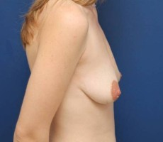 BALTIMORE BREAST RECONSTRUCTION CLIENT #6 SIDE VIEW