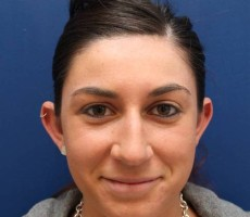 BALTIMORE OTOPLASTY (EAR SURGERY) CLIENT #5