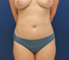 BALTIMORE BREAST FAT GRAFTING CLIENT #2 FRONT VIEW