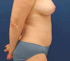 BALTIMORE BREAST FAT GRAFTING CLIENT #2 SIDE VIEW