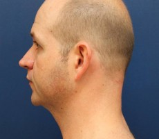 BALTIMORE CHIN IMPLANT CLIENT #2, SIDE VIEW
