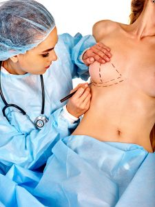 Misconceptions About Breast Augmentation and Lift Breast Augmentation: Baltimore Plastic Surgeon Reveals Top 5 Misconceptions