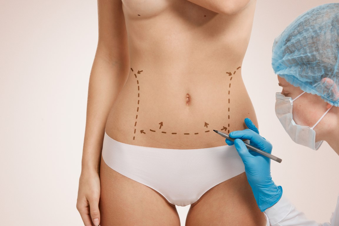 How to Prep Tummy Tuck