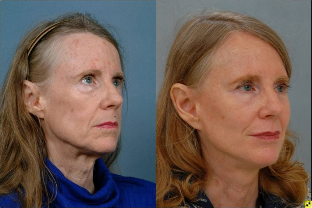 facelift surgeryb4after 263 1024x683 - Plastic Surgery in Baltimore - Reasons to Consider a Neck Lift