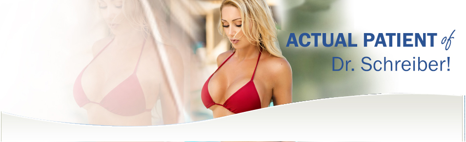 Breast Augmentation in Baltimore Maryland