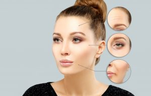 shutterstock 604162937 300x191 - Microneedling is Another Facial Rejuvenation Option for Those Considering a Facelift in Baltimore