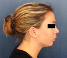 BALTIMORE CHIN IMPLANT CLIENT #3, SIDE VIEW