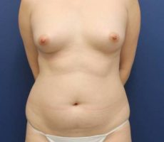 BALTIMORE BREAST FAT GRAFTING CLIENT #1 FRONT VIEW