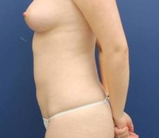 BALTIMORE BREAST FAT GRAFTING CLIENT #1 SIDE VIEW