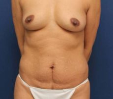 Breast Augmentation with a Tummy Tuck CLIENT #3 FRONT-VIEW