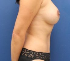 Breast Augmentation with a Tummy Tuck CLIENT #3 SIDE-VIEW